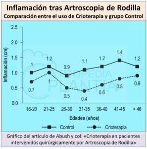 Disminución de la Inflamación con el uso de la Crioterapia tras Artroscopia de Rodilla - Ortopedia Plantia de Donostia - San Sebastián