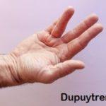 Guante para la enfermedad de Dupuytren en Ortopedia Plantia de Donostia-San Sebastián