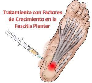 Factores de crecimiento plasmático o Plasma Rico en Plaquetas, tratamiento de la fascitis plantar