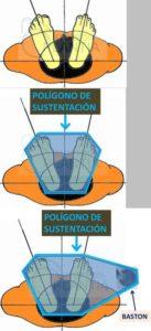 Aumento de la estabilidad y equilibrio al usar bastón ortopédico, por el aumento del polígono de sustentación. Ortopedia Plantia