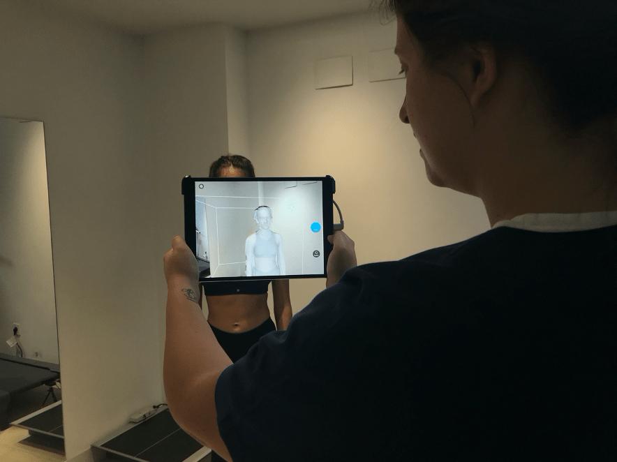 Escaneo 3D Escoliosis